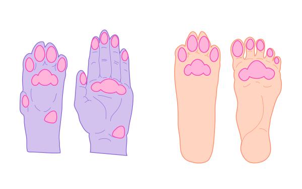 Нарост на ноге на пальцах кости коже. Названия и фото